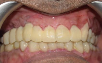dental implant clinic